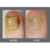 China GaAlAs Diode Laser Machine For Treatment Toenail Fungal Infection 1064m Wavelength on sale