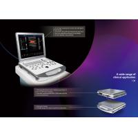 CE / ISO Color Doppler Portable Ultrasound with Printer / UPS / Probes Manufactures