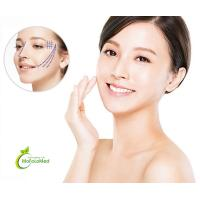 Aesthetic PDO COG Lifting Thread for Plastic Surgery
