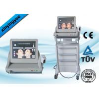 Frequency Face Tightening Wrinkle Removal HIFU Equipment For Mouth Manufactures