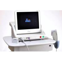 China High Intensity Focused Ultrasound on sale