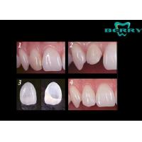 Buy cheap Economic Porcelain Dental Veneers for thickness 0.5MM , Porcelain Veneer Teeth from wholesalers