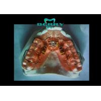 Traditional Three-Direction Arch Expansion Dental Orthodontic Appliance Manufactures