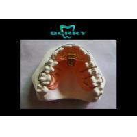 Expansion Appliances Orthodontics One-Dimensional Labial Plastic Tray Material Manufactures