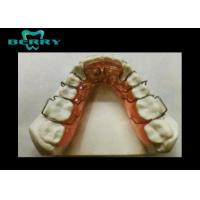 Spring Splint Material Different Orthodontic Appliances Difficult to Clean Manufactures